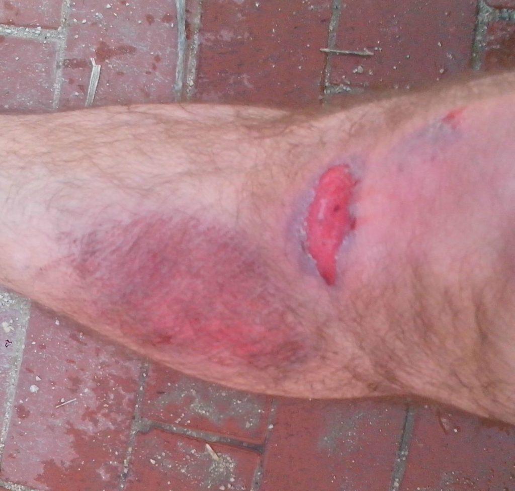 herida bici